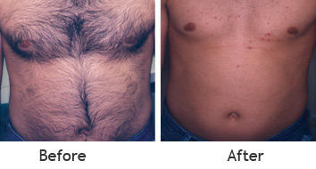 Laser Hair Removal just for men at Sollay in Baltimore