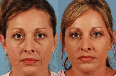 Dermal fillers, Botox and other injectables.