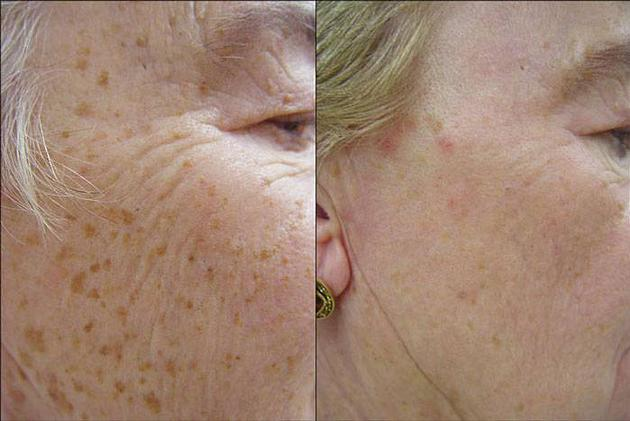 LASER SKIN REJUVENATION AT SOLLAY COSMETIC MEDICAL AND LASER CENTER IN BALTIMORE