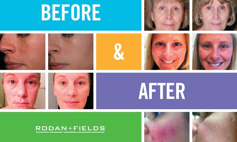 Rodan and Fields in Annapolis, Maryland